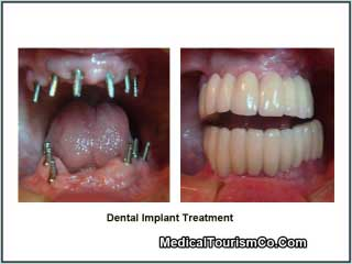 Dental Implants Cost Artificial Teeth In Mexico Med