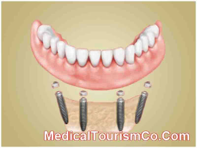 All-on-4 Dental Implants - Los Algodones