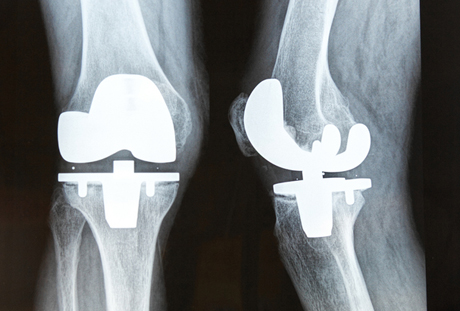 Computer Aided Knee Replacement - India