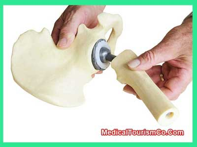 Hip Replacement in Monterrey - Mexico