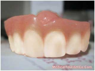 Affordable Snap-on-Dentures