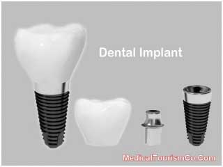 Dental Implants in San Salvadore