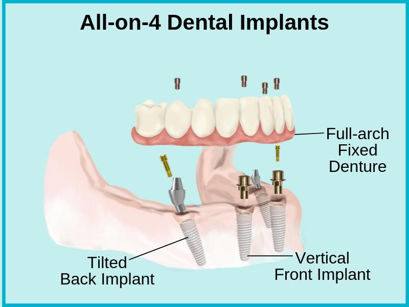 All-on-4 Dental implants in Tijuana