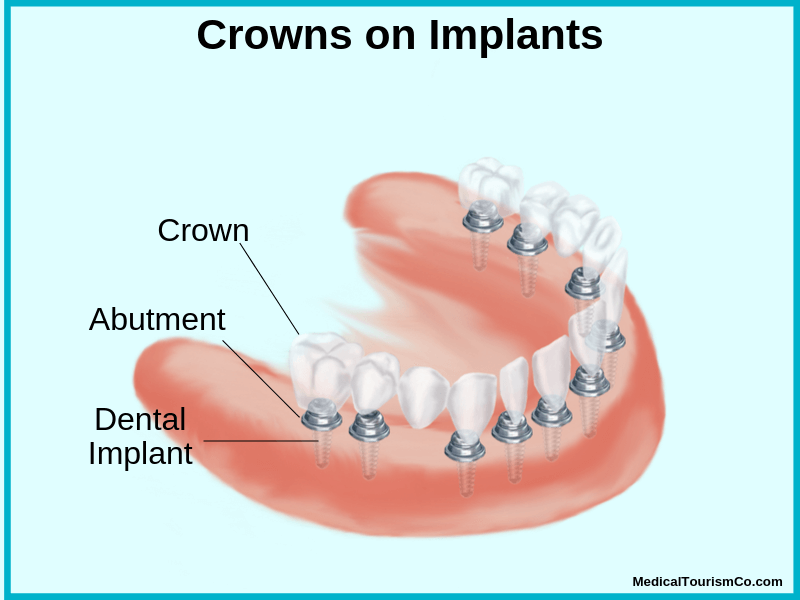 Crown on implants