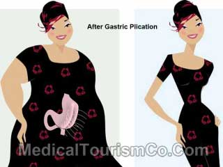 Gastric Plication - Before-and-After