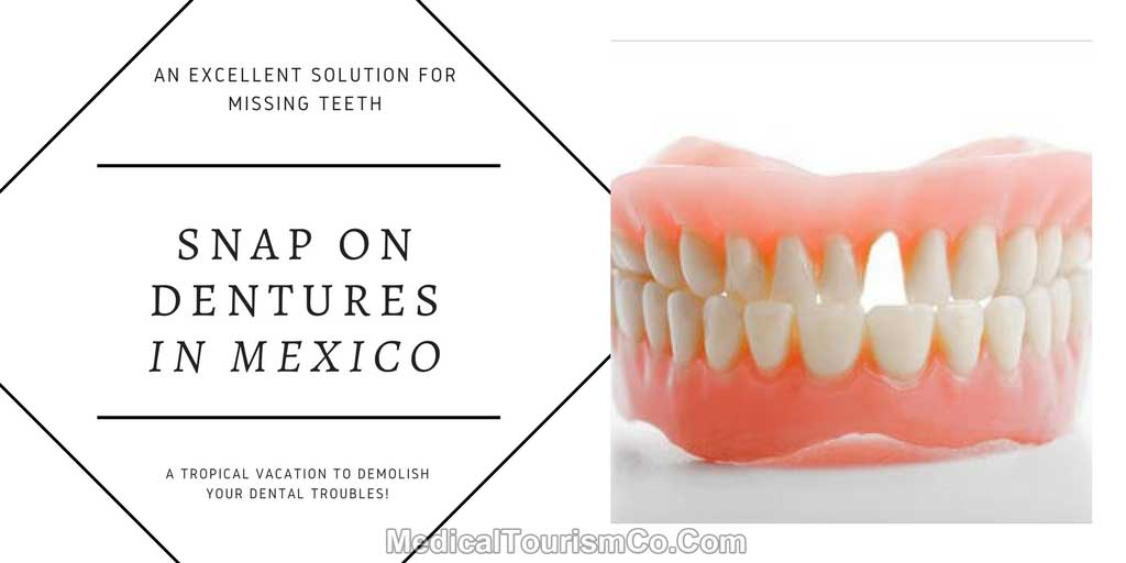 Snap-On-Dentures-in-mexico.jpg