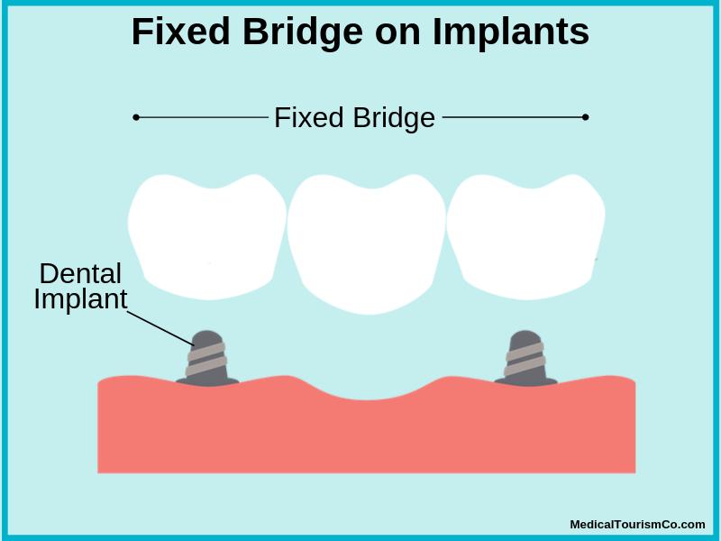 Fixed Bridge on Implants in Colombia