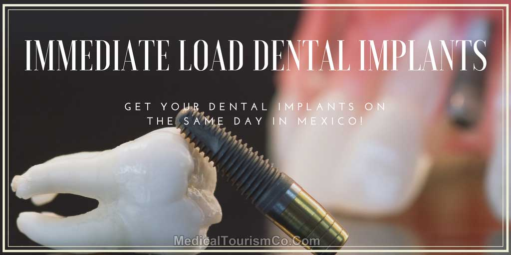 same-day-dental-implants-in-mexico.jpg