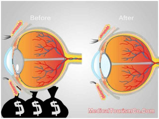 Cataract Surgery Before-and-After