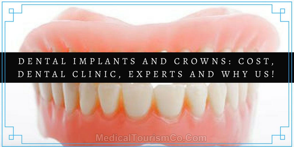 Cost-Dental-Clinic-Experts-and-why-us.jpg