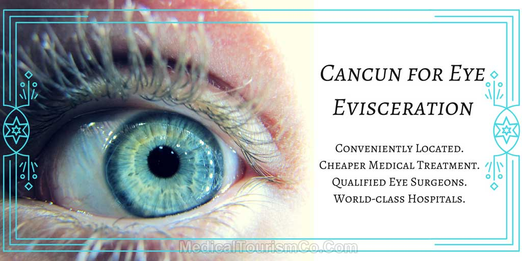 Cancun-for-Eye-Evisceration.jpg