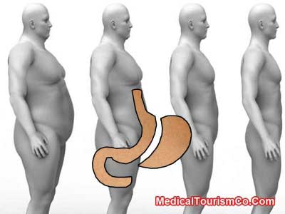 From-fat-to-fit-with-gastric-sleeve
