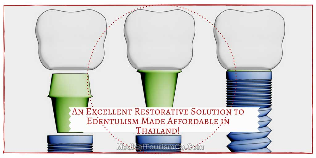 An-Excellent-Restorative-Solution-to-Endentulism-Made-Affordable-in-Thailand-1.jpg
