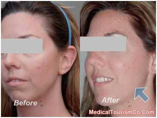 Chin Augmentation Before-and-After