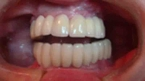 After Dental Implants in Costa Rica