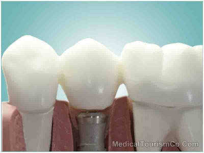Dental Implants in Pattaya - Thailand