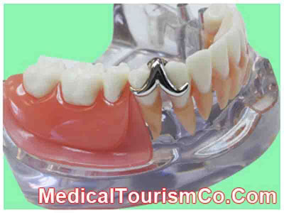 Dentures in Algodones - Mexico
