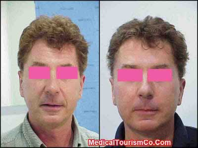 Facelift Before-and-After