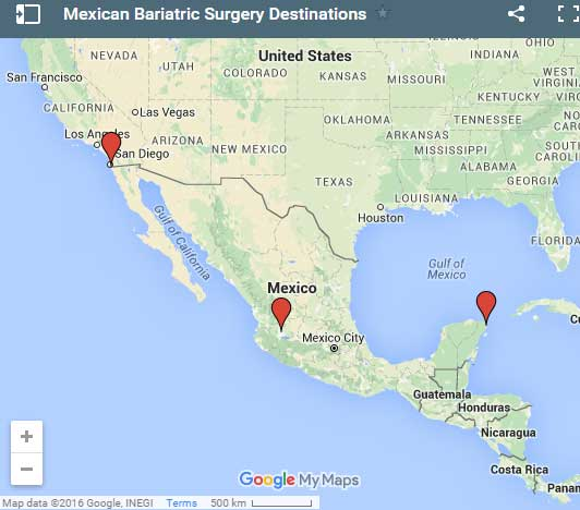 Mexico Bariatric Surgery Destinations