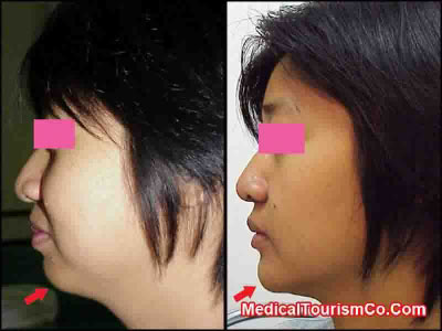 Orthognathic Surgery in Thailand for Correction of Weak Chin