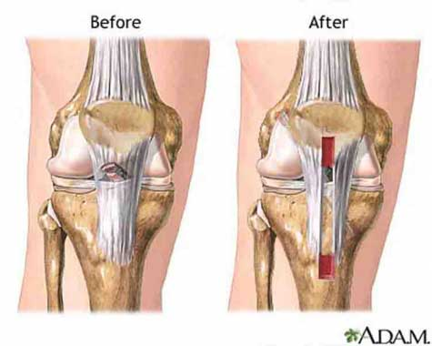 ACL Reconstruction Surgery