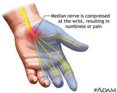 Carpal Tunnel Pain