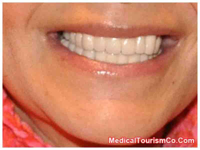 Dental Implants in Los Algodones - Mexico