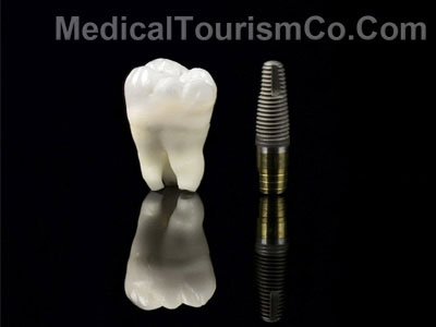 Dental Implants in Patong - Thailand