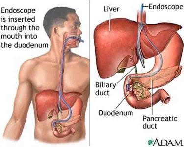 Endoscopic Bile Duct Stone Removal