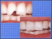 Tooth Contouring Reshaping