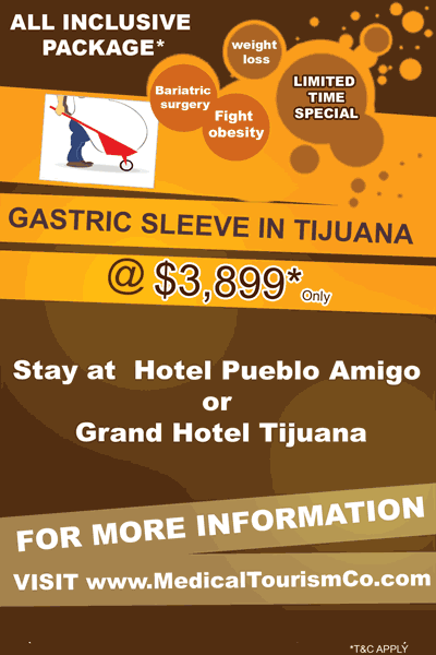 Vertical Sleeve In Tijuana Discount Package