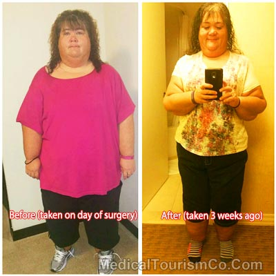 Bariatric Surgery  in Tijuana - Before-and-After