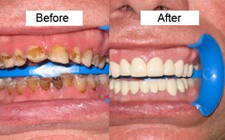 Dental Work - Before and After