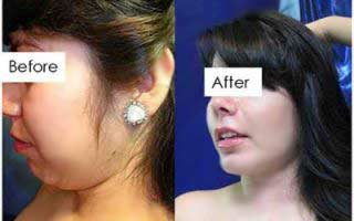 Before and After Plastic Surgery in Mexico