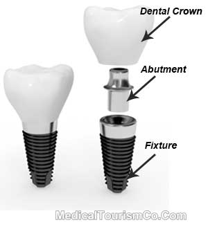 Dental Implants in Canada