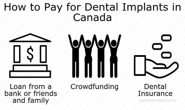 how-to-pay-for-dental-implants
