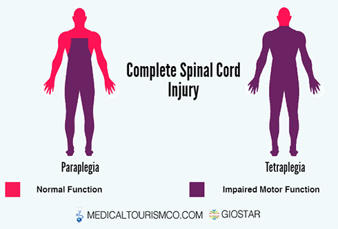 Complete-Spinal-Cord-Injury