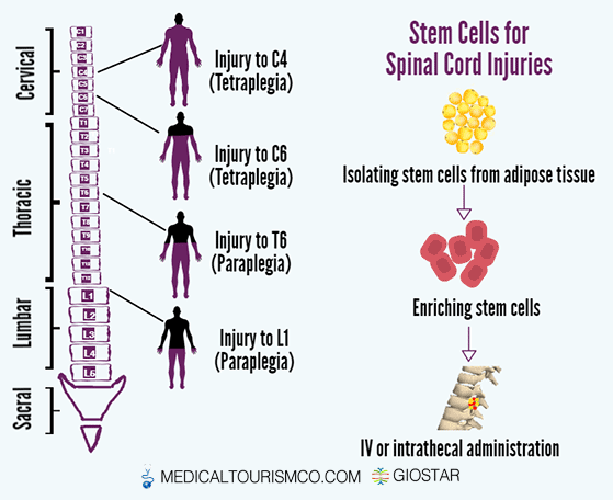 Stem-cells-for-Spinal-cord-Injury-in-mexico
