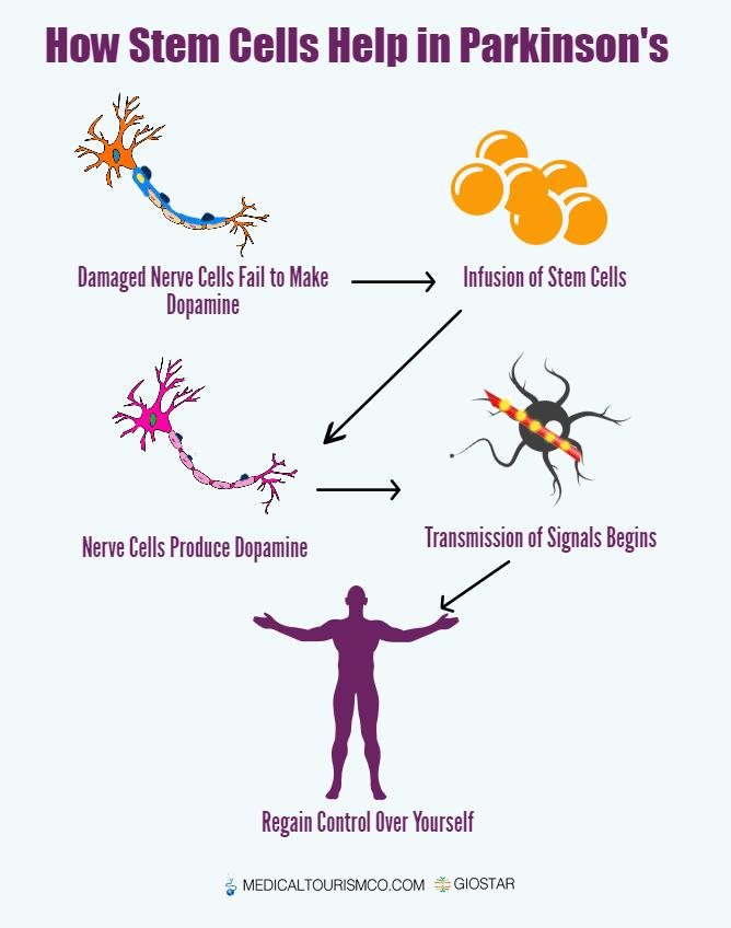 Stem Cells Treatment - Parkinson's - Infographic