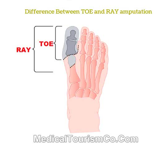 Difference Between Toe and Ray Amputation