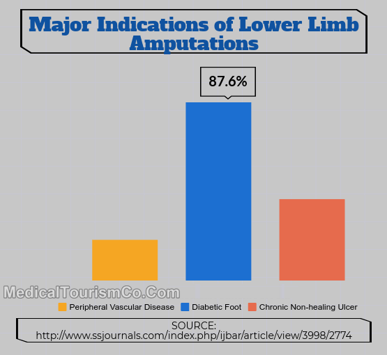 Indications Of Lower Limb Amputation