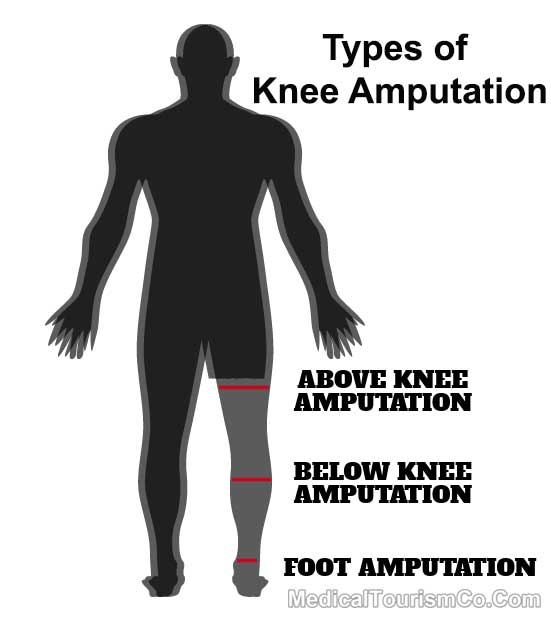 Types Of Knee Amputation