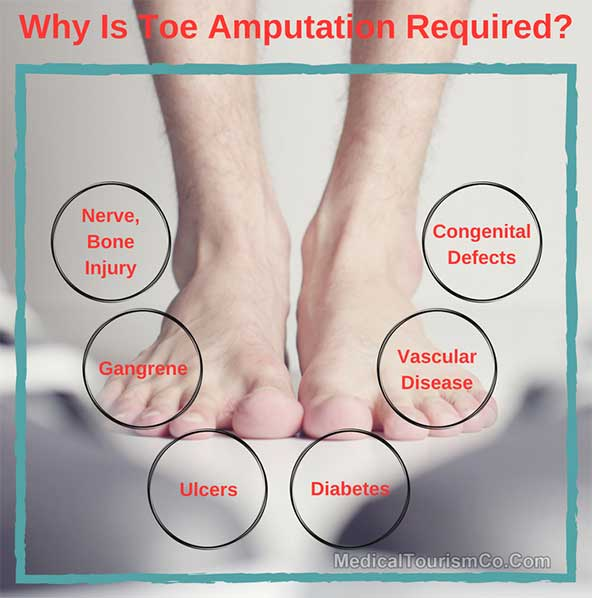 Why is Toe Amputation Required
