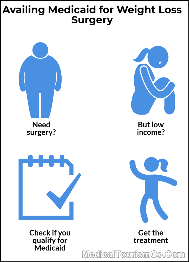 Medicaid For Bariatric Surgery