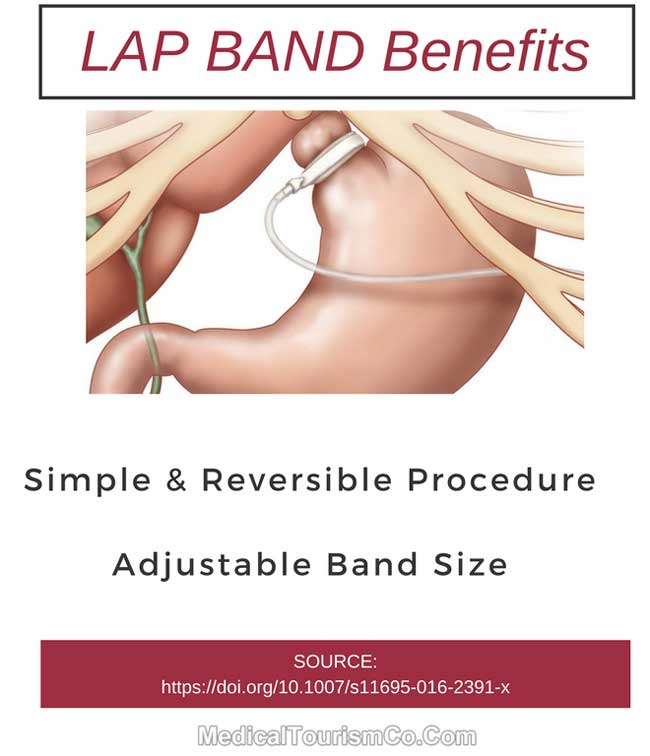 Benefits of Gastric Banding