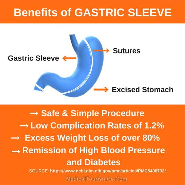 Benefits of Gastric Sleeve