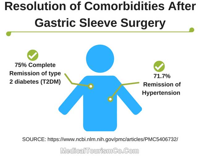 Resolution of Comorbidities After Sleeve Surgery