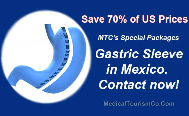 Gastric Sleeve In Mexico From 3 899