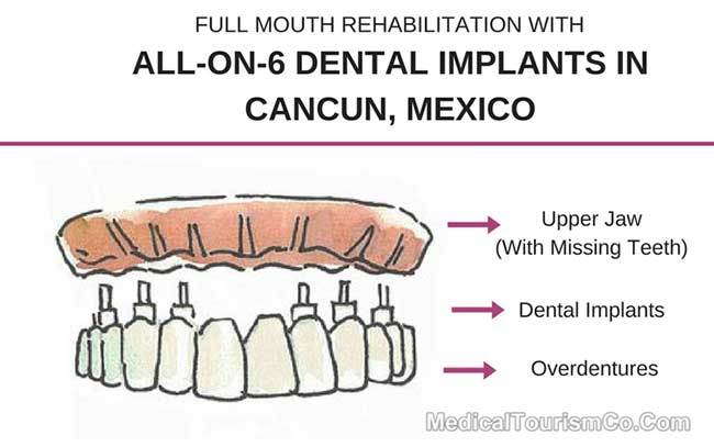 All-on-6 Dental Implants in Cancun Mexico