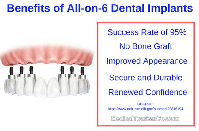 Benefits of All-on-6 Dental Implants